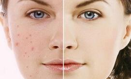 Kem dưỡng da Jergens Ultra Healing dành cho da khô của Mỹ 621ml giahuynhphat.com 2