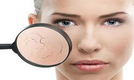 Kem dưỡng da Jergens Ultra Healing dành cho da khô của Mỹ 621ml giahuynhphat.com 1