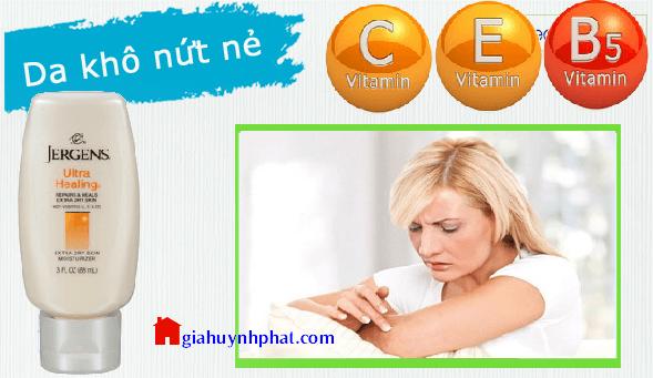 Sữa dưỡng ẩm da khô gót chân khủy tay đầu gối Jergens Ultra Healing giahuynhphat.com