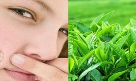 trị mụn bằng trà xanh giahuynhphat.com